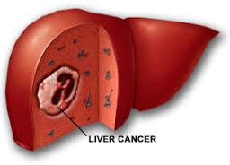 liver 2